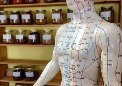 acupuncture-bocaux-remedes